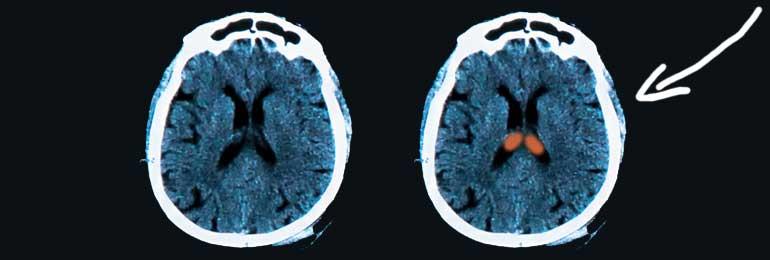 amygdala-banner.jpg